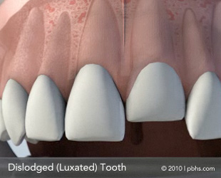 dislodged-tooth